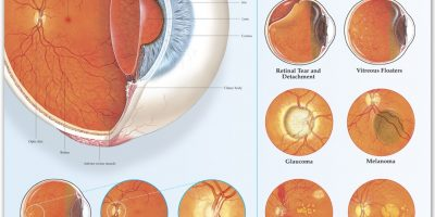 Disorders of the Eye {Infographic}