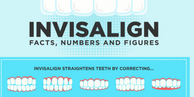 Invisalign: Facts & Numbers {Infographic}