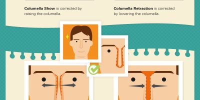 Common Nose Job Terms Explained [Infographic]