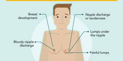 Treating Enlarged Breasts (Gynecomastia) In Men {Infographic}