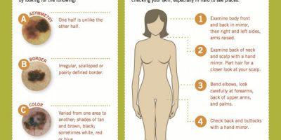 How to Spot Skin Cancer {Infographic}