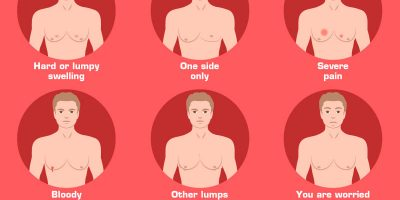 What Is Gynecomastia? [Infographic]