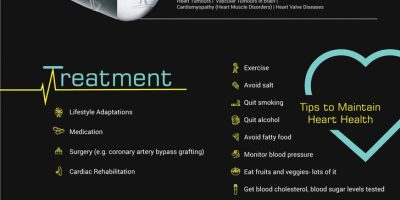 Demystifying Cardiovascular Diseases [Infographic]