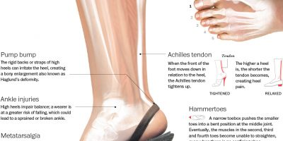 Effects of High Heels On Body {Infographic}