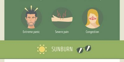 DIY Remedies for Sunburns, Bites, Scratches