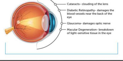 The Importance of Eye Health [Infographic]