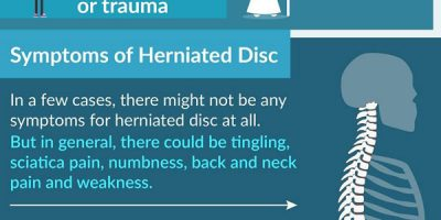 All About Herniated Disc [Infographic]
