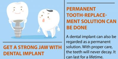 7 Must Know Facts About Dental Implants [Infographic]