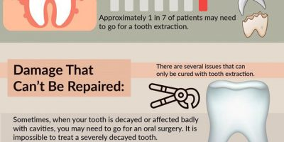 4 Signs You Need Tooth Extraction [Infographic]